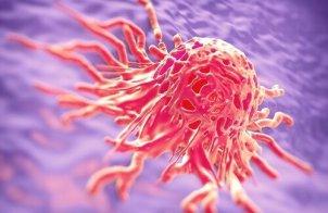 kanker-1-500x325